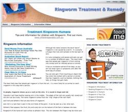 ringworm treatment
